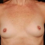 Breast Augmentation Silicone Gel - Case #11 Before