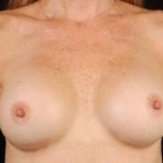 Breast Augmentation Silicone Gel - Case #11 After