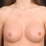 Breast Augmentation Silicone Gel - Case #12 After