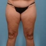 Liposuction - Case #20 Before