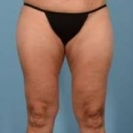 Liposuction - Case #20 After