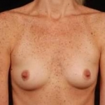 Breast Augmentation Silicone Gel - Case #13 Before