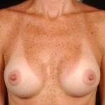 Breast Augmentation Silicone Gel - Case #13 After