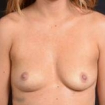 Breast Augmentation Silicone Gel - Case #14 Before