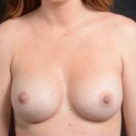 Breast Augmentation Silicone Gel - Case #14 After