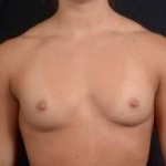 Breast Augmentation Silicone Gel - Case #16 Before