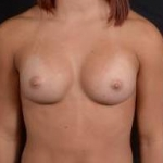 Breast Augmentation Silicone Gel - Case #16 After