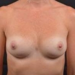 Breast Augmentation Silicone Gel - Case #17 After