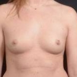 Breast Augmentation Silicone Gel - Case #18 Before