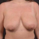 Breast Reduction - Case #33 Before