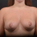 Breast Reduction - Case #33 After