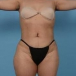 360 Liposuction - Case #19 After