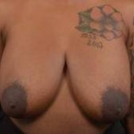 Breast Reduction - Case 32 Before