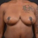 Breast Reduction - Case 32 After