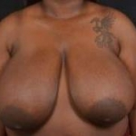 Breast Reduction - Case #31 Before