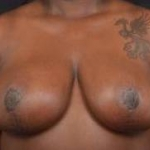 Breast Reduction - Case #31 After
