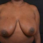 Breast Reduction - Case #30 Before