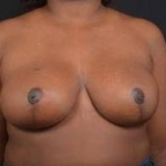 Breast Reduction - Case #30 After