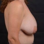 Breast Reduction - Case #29 Before