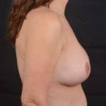 Breast Reduction - Case #29 After