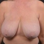 Breast Reduction - Case #27 Before