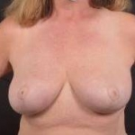 Breast Reduction - Case #27 After