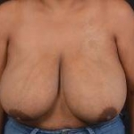 Breast Reduction - Case #26 Before