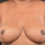 Breast Reduction - Case #26 After