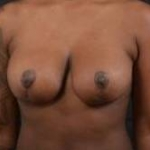 Breast Reduction - Case #25 After