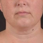 Liposuction - Case #18 Before