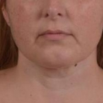 Liposuction - Case #18 After