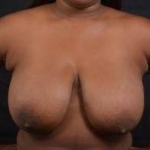 Breast Reduction - Case #23 Before