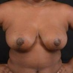 Breast Reduction - Case #23 After