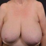 Breast Reduction - Case #22 Before