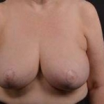 Breast Reduction - Case #22 After