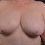 Breast Reduction - Case #21 Before