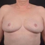 Breast Reduction - Case #21 After
