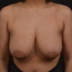 Breast Reduction - Case #20 Before