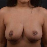 Breast Reduction - Case #20 After