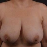 Breast Reduction - Case #17 Before