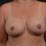 Breast Reduction - Case #17 After