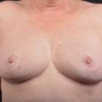Breast Reduction - Case #16 After