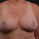 Breast Reduction - Case #15 After