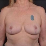Breast Reduction - Case #14 After