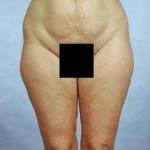 Liposuction - Case #1 Before
