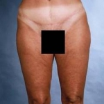 Liposuction - Case #1 After
