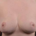 Breast Reduction - Case #13 Before