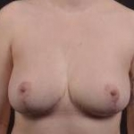 Breast Reduction - Case #13 After