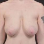 Breast Reduction - Case #12 Before