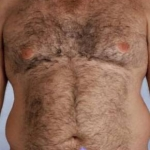 Liposuction - Case #2 Before